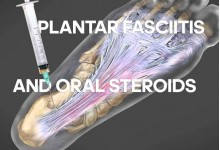 How to cure Plantar fasciitis with steroids